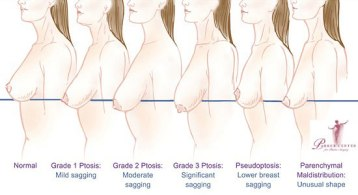 breast-lift-diagram-ptosis11